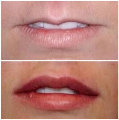 Medispa S10 Sheffield Nottinghamshire Derby Mansfield Chesterfield Dermal Fillers 006