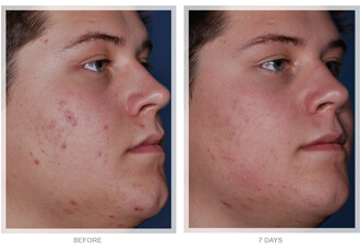 Medispa S10 Sheffield Advanced Skin Care Acne Treatment 001