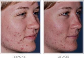 Medispa S10 Sheffield Advanced Skin Care Acne Treatment 002