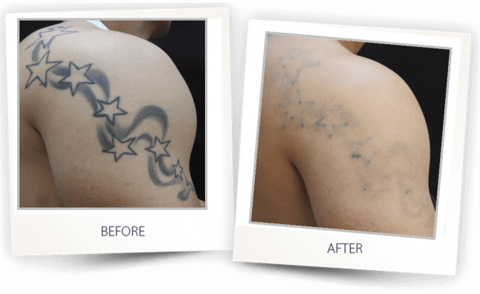 Medispa S10 Sheffield Nottingham Derby Chesterfield Skin Tattoo Removal 002