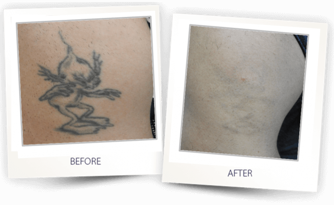 Medispa S10 Sheffield Nottingham Derby Chesterfield Skin Tattoo Removal 006