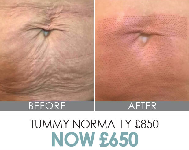 Plasma Elite | Medispa S10 Sheffield | Advanced Skin Science at our