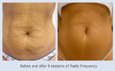 Medispa S10 Advanced Skin Science 3D Lipo Lipomed Sheffield Nottinghamshire Derby Mansfield Chesterfield 002