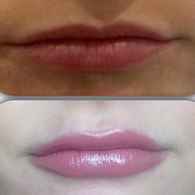 Medispa S10 Sheffield Clinic Aesthetics Dermal Fillers 005