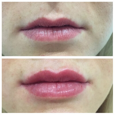 Medispa S10 Sheffield Clinic Aesthetics Dermal Fillers 006
