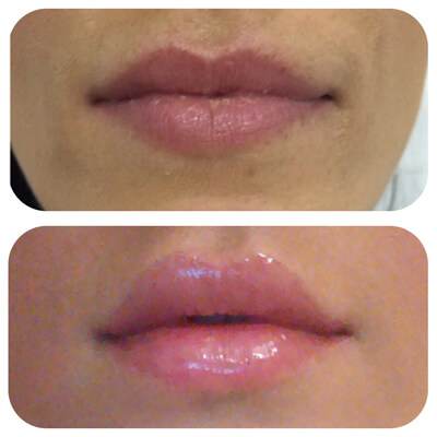 Medispa S10 Sheffield Clinic Aesthetics Dermal Fillers 007