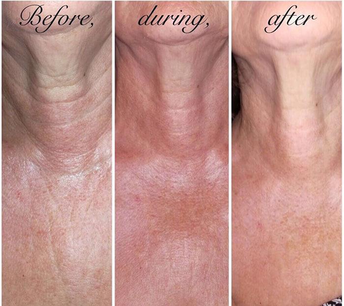 Medispa S10 Sheffield Aesthetics Clinic Botox 3D Lipo Slimming Skin Tightening Anti Ageing Xela Rederm 001