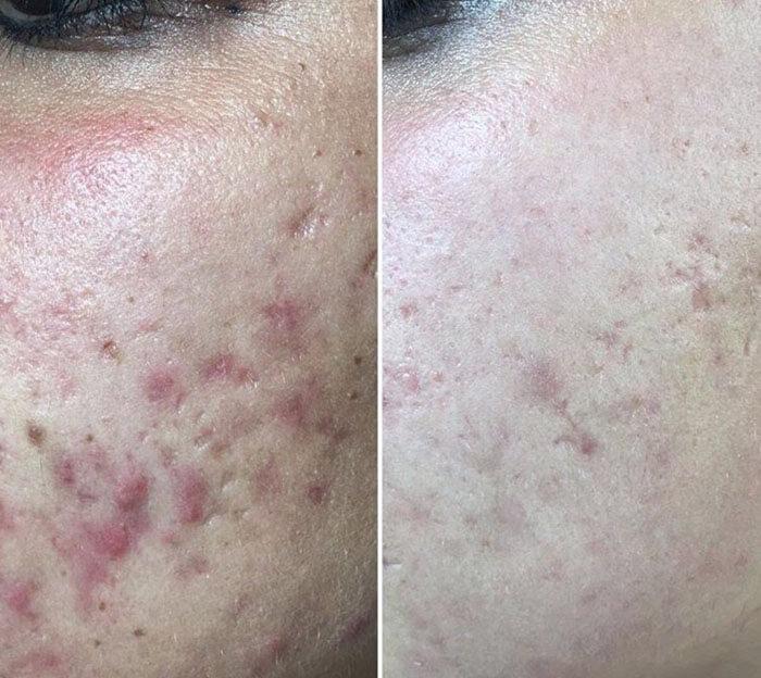 Medispa S10 Sheffield Aesthetics Clinic Botox 3D Lipo Slimming Skin Tightening Anti Ageing Xela Rederm 002