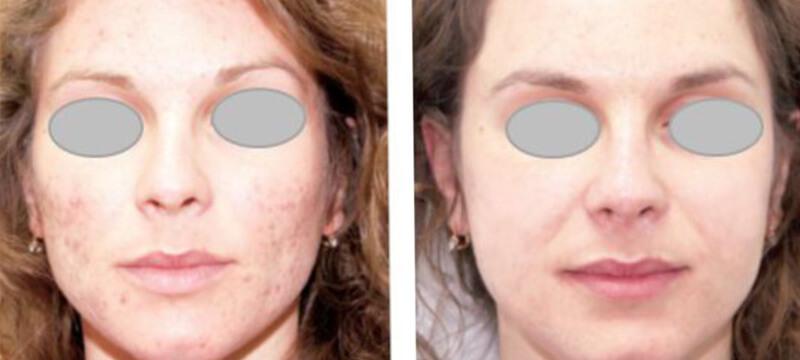 Medispa S10 Sheffield Aesthetics Clinic Botox 3D Lipo Slimming Skin Tightening Anti Ageing Xela Rederm 003