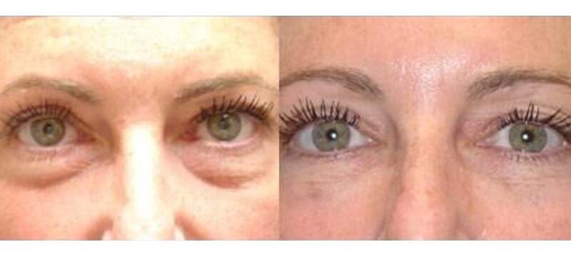 Medispa S10 Sheffield Aesthetics Clinic Botox 3D Lipo Slimming Skin Tightening Anti Ageing Xela Rederm 004