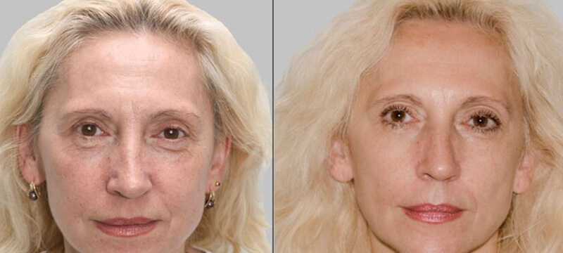 Medispa S10 Sheffield Aesthetics Clinic Botox 3D Lipo Slimming Skin Tightening Anti Ageing Xela Rederm 005