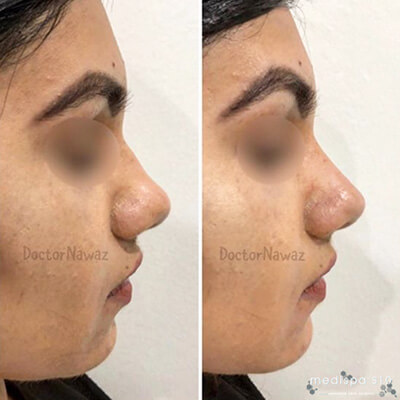 Medispa S10 Sheffield Aesthetics Clinic Nose Job Non Surgical Rhinoplasty 003