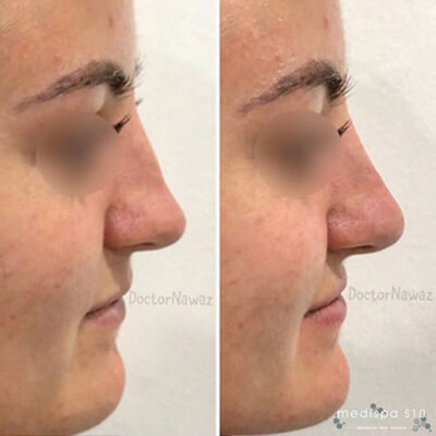 Medispa S10 Sheffield Aesthetics Clinic Nose Job Non Surgical Rhinoplasty 004